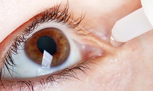Dry_Eye_01