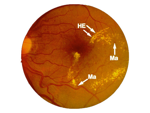 diabetic_retinopathy2